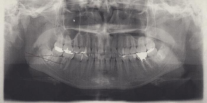 完全埋伏歯のレントゲンです。下両方生えています。