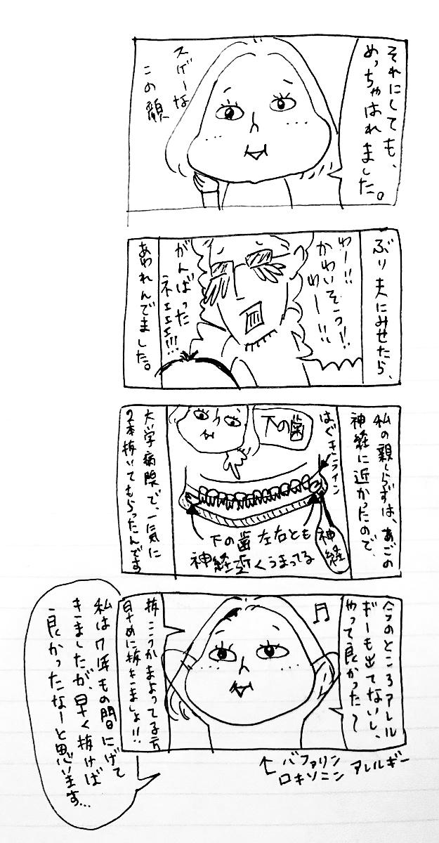 完全埋伏歯手術(親知らず)のため入院!四コマ漫画2