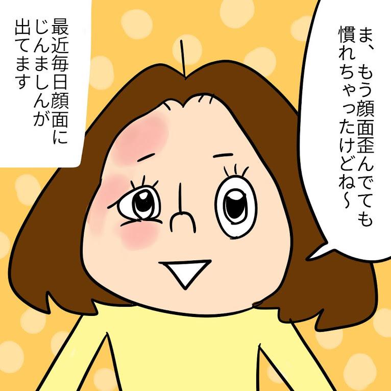 TwitterやInstagramに投稿しているPちゃんの日常4コマ漫画まとめ8<全10話>蕁麻疹に悩まされる