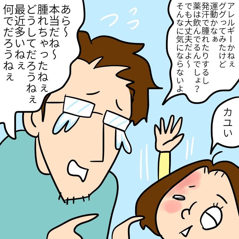 TwitterやInstagramに投稿しているPちゃんの日常4コマ漫画まとめ8<全10話>運動翌日に蕁麻疹が
